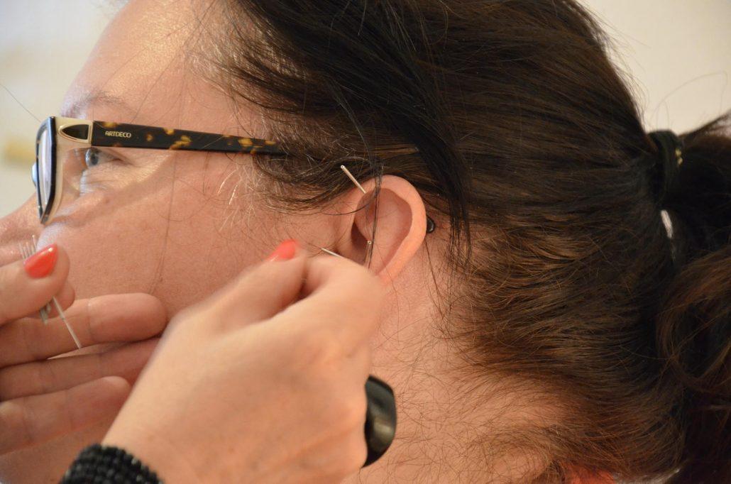 fogyás akupunktúrával budapest